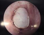Small chirurgia ryc11 opt