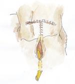 Small chirurgia ryc9 opt